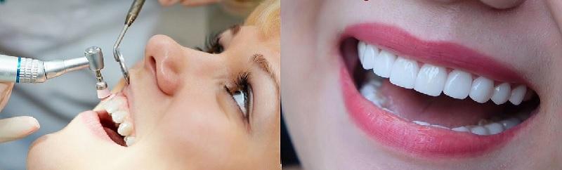 Dịch vụ chăm sóc răng miệng tại N99 được nhiều khách hàng đánh giá cao