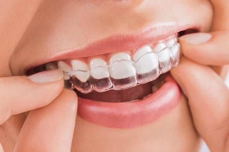 Niềng răng là một dịch vụ khá hot tại phòng khoa Việt Tiệp