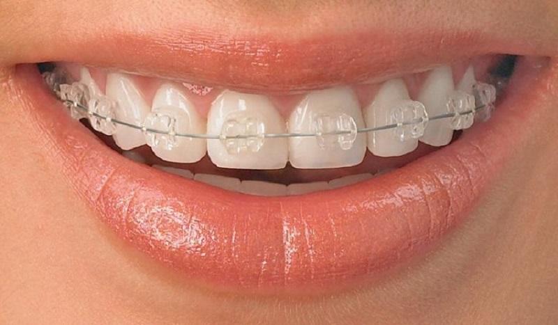 Niềng răng chất lượng tại nha khoa Úc Châu
