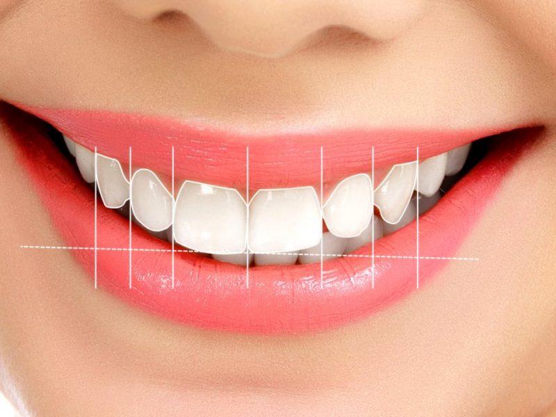 Thiết kế nụ cười đẹp cùng Nha khoa Phạm Xuân Sanh