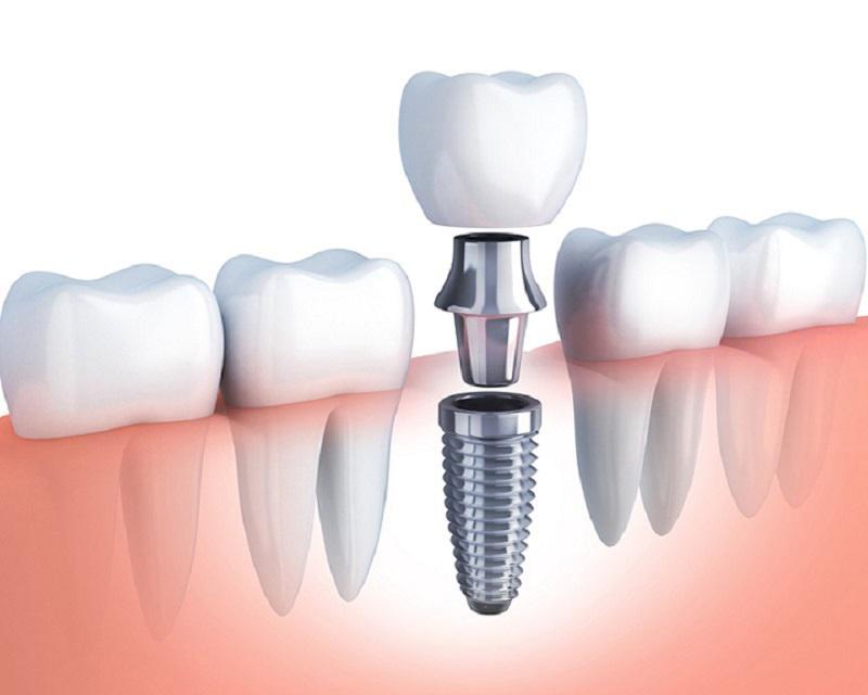 Trồng răng Implant tại nha khoa quận Hoàng Mai