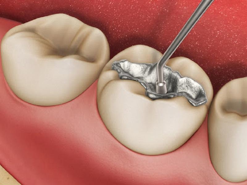 Trám răng chất lượng là dịch vụ nha khoa nổi bật tại phòng nha Nguyễn Bảo