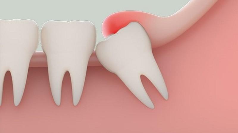 Nha Khoa Đại Kim Hà Nội - Nha khoa Quận Hoàng Mai uy tín với dịch vụ điều trị bệnh lý răng miệng