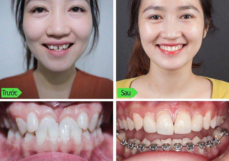 Niềng răng trước và sau tại phòng Khoa Đức 108 Hà Nội