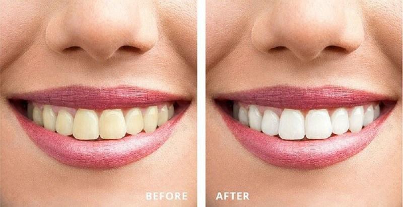 Tẩy trắng răng tại phòng khoa Hương Quỳnh