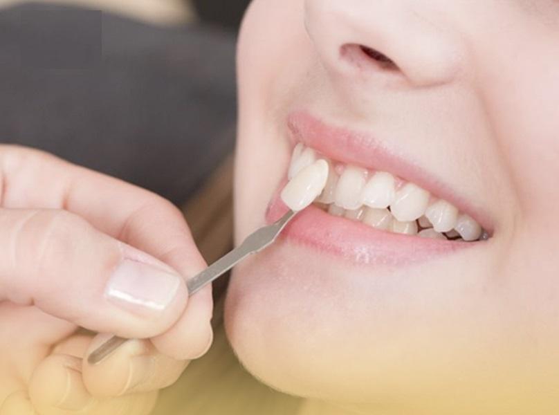Dán sứ Veneer giúp mang lại cho bạn hàm răng đều, đẹp, trắng sáng tự nhiên