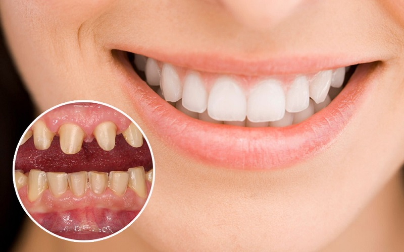 Trồng răng sứ đang trở thành xu hướng thẩm mỹ nha khoa hiện nay