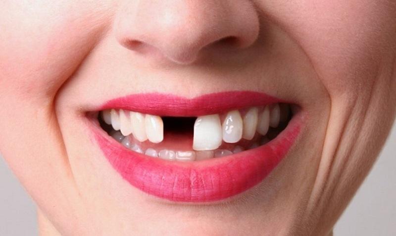 Trồng răng Implant có thể thực hiện được ở tất cả trường hợp bị mất răng