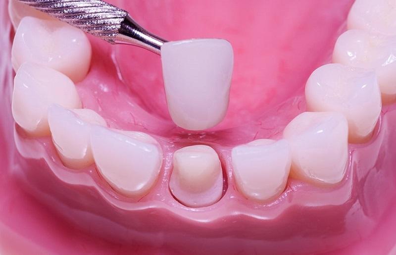 Thời gian và quy trình trồng răng sứ sẽ có sự thay đổi tùy từng trường hợp cụ thể