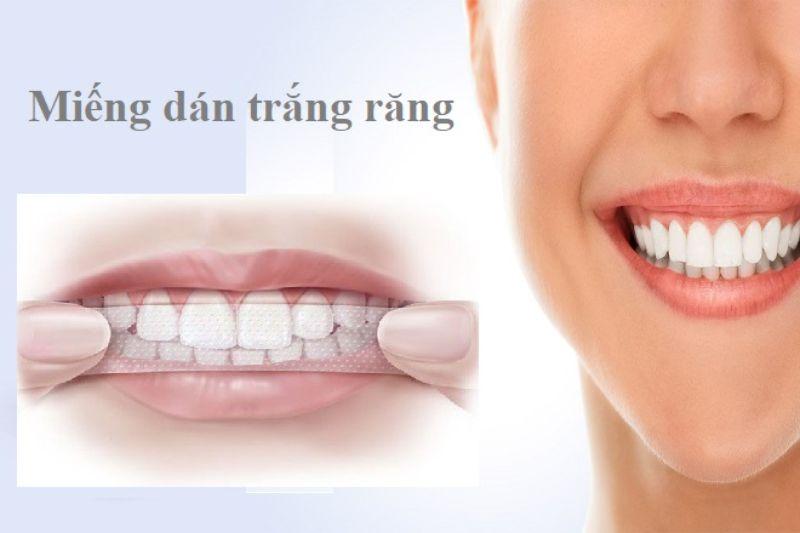 Miếng dán trắng răng là một sản phẩm có chứa thành phần hóa học dùng để tẩy trắng răng