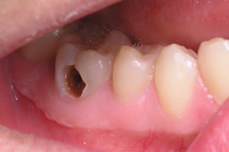 Một số đối tượng mắc các bệnh lý răng miệng như viêm nha chu, sâu răng, viêm lợi,... không nên dùng sản phẩm