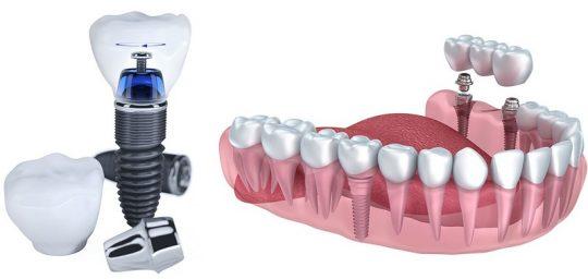 Trồng răng sứ cố định duy trì trọn đời trong khoang miệng mà không cần phải phục hình lại