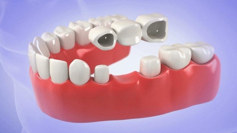 Ưu điểm của phương pháp cầu răng sứ là có tính thẩm mỹ cao