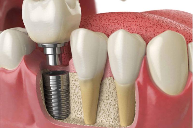 Trồng răng giả có ảnh hưởng gì không? Phương pháp cấy ghép Implant có thể sử dụng trọn đời nhưng có chi phí cao