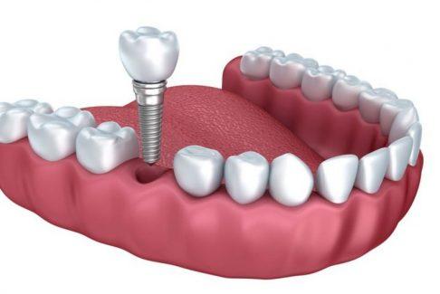 Trồng răng giả có ảnh hưởng gì không sẽ phụ thuộc vào quy trình thực hiện của bác sĩ