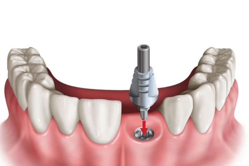 Trồng răng giả là việc thay thế chiếc răng thật của bạn bằng một chiếc răng giả thông qua phương pháp nha khoa