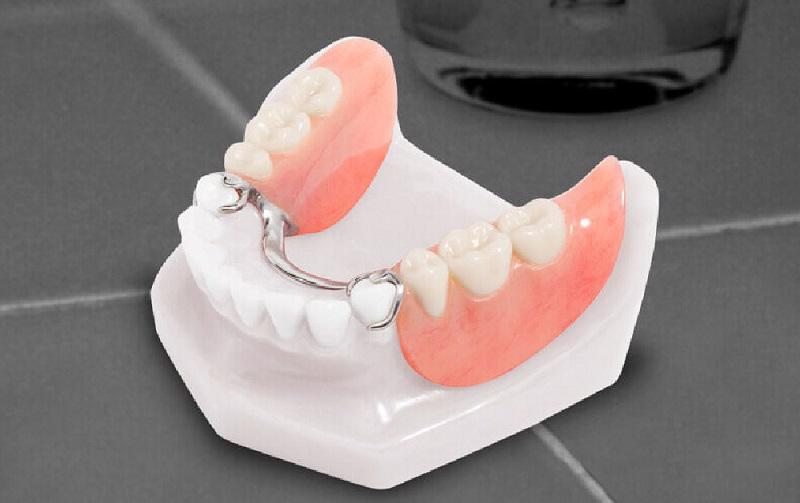 Cấu tạo của bộ hàm giả gồm nền hàm hoặc 1 khung hàm bằng chất liệu nhựa/kim loại và bên trên là răng giả