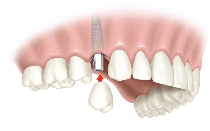 Trồng răng giả bằng phương pháp Implant là công nghệ hiện đại nhất hiện nay