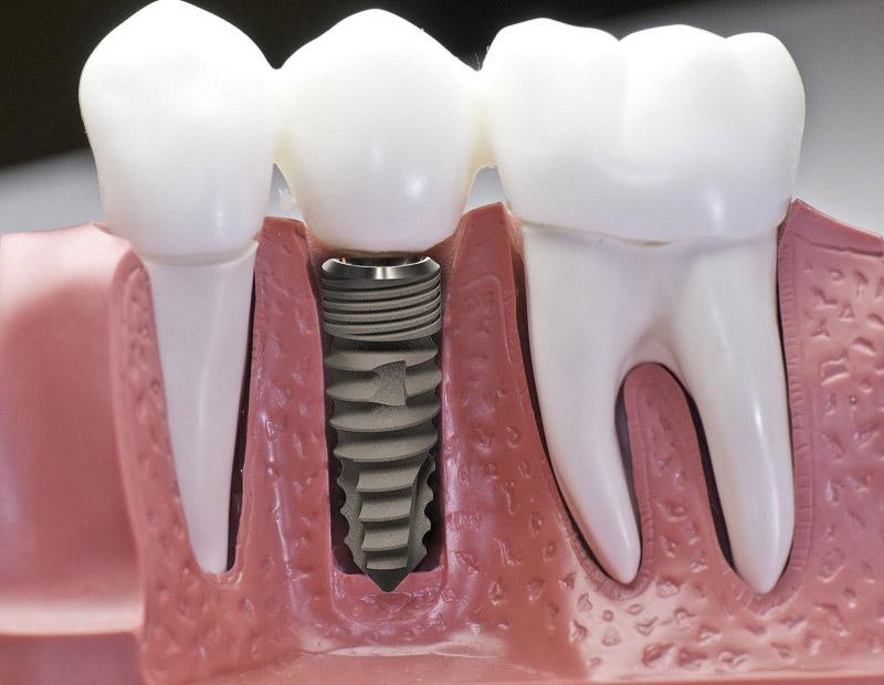 Implant là một ốc vít nhỏ có kích thước bằng một chân răng được đặt vào xương hàm