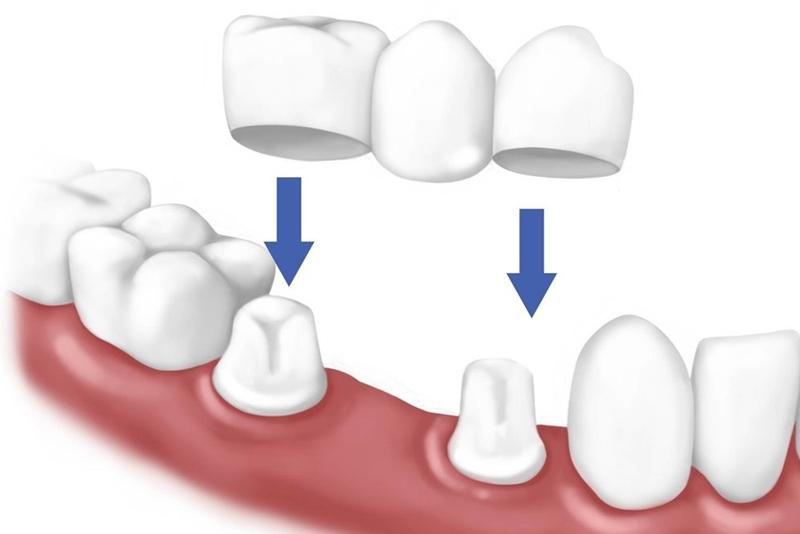Phương pháp trồng răng giả cầu răng sứ