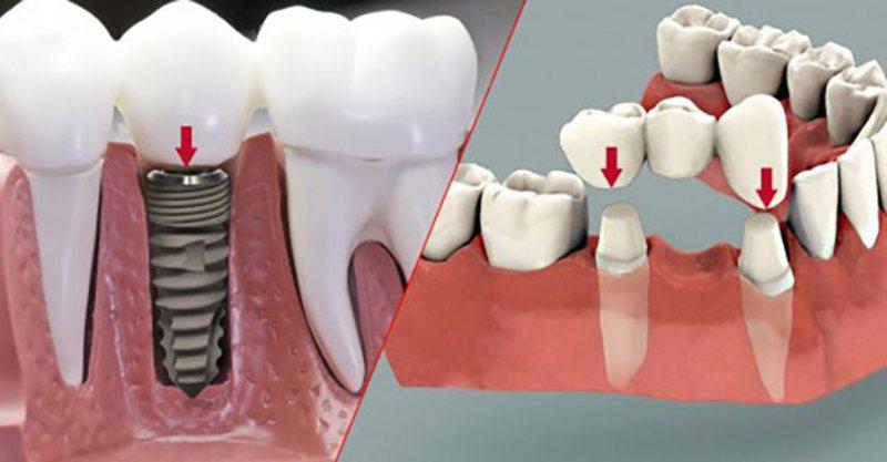 Trồng răng giả cố định là biện pháp nha khoa dành cho những trường hợp bị mất răng