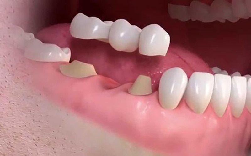 Chi phí làm cầu răng sứ thấp nên phù hợp với điều kiện của nhiều người