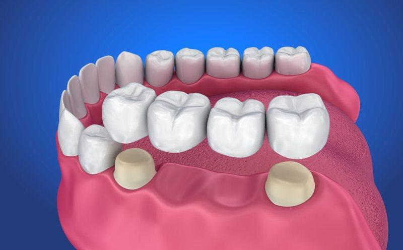 Việc trồng răng cố định giúp người dùng có thể ăn nhai dễ dàng, không sợ bung tụt