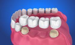 Trồng răng giả cố định có hai phương pháp là cấy ghép Implant và cầu răng sứ