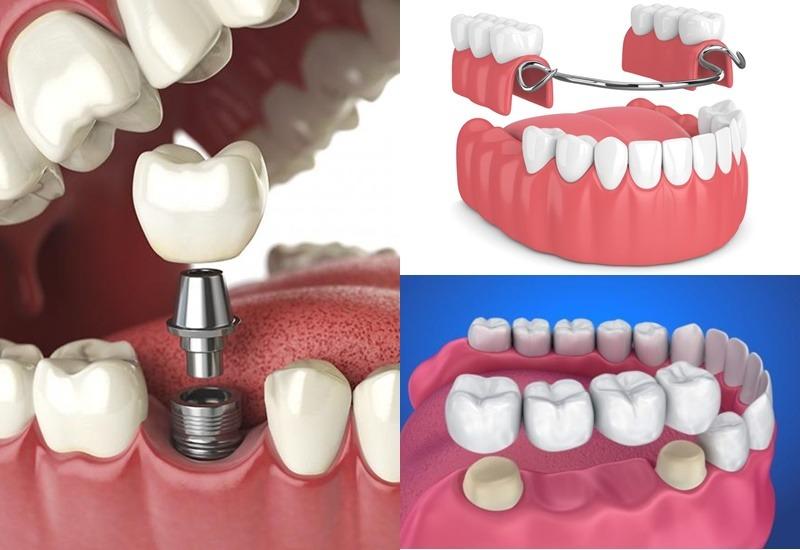 Một số phương pháp trồng răng giả bạn có thể tham khảo
