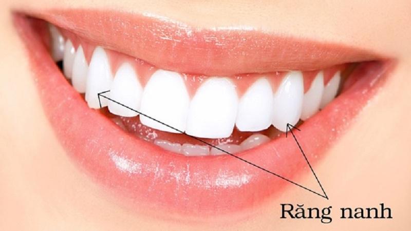 Vị trí của răng nanh