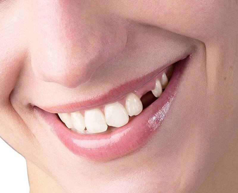 Khuyết răng nanh gây ảnh hưởng tới chức năng cắn xé thức ăn và thẩm mỹ