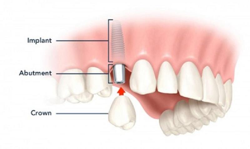 Trồng răng nanh Implant là một phương pháp tối ưu