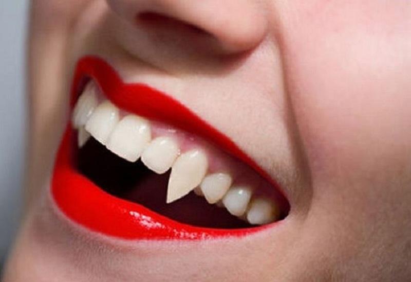 Trồng răng nanh ma cà rồng là một xu hướng được giới trẻ quan tâm