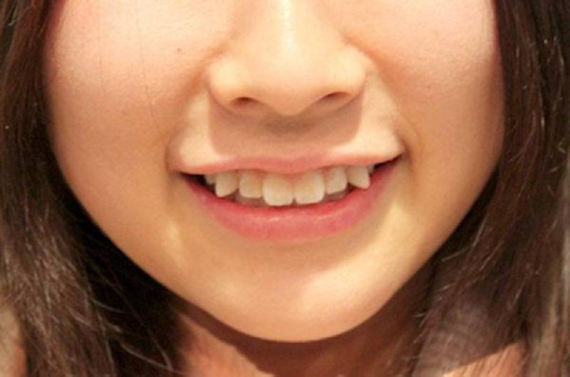 Trồng răng nanh bao nhiêu tiền còn phụ thuộc vào phương thức thực hiện