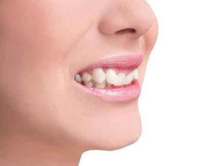 Trồng răng nanh bao nhiêu tiền là vấn đề được nhiều người quan tâm