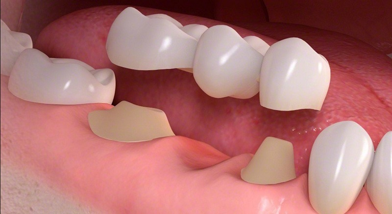 chi phí làm răng sứ