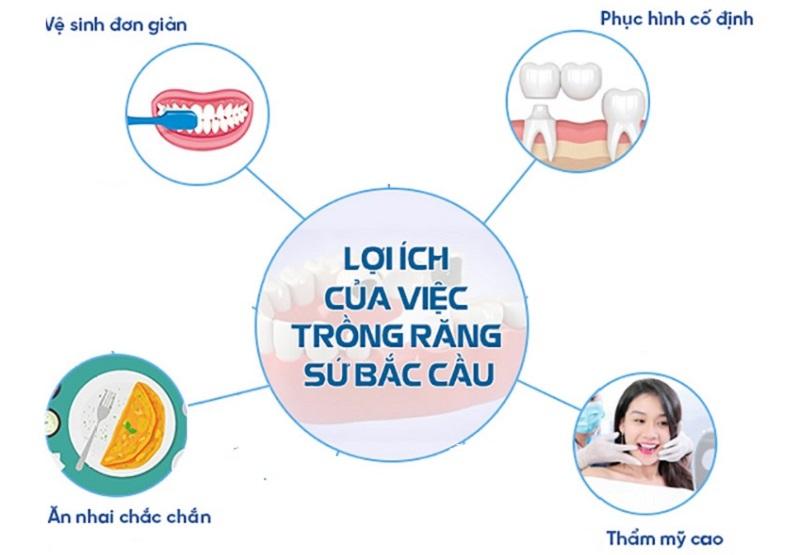 Một số lợi ích khi trồng răng giả cố định