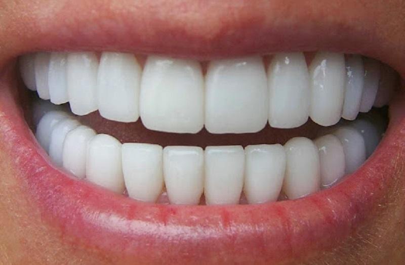 Trồng răng sứ bao nhiêu một chiếc tùy vào loại răng sứ lựa chọn
