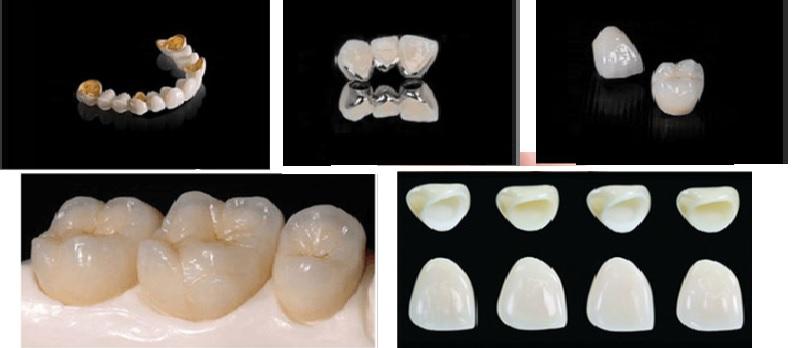 Một số mẫu răng sứ phổ biến hiện nay