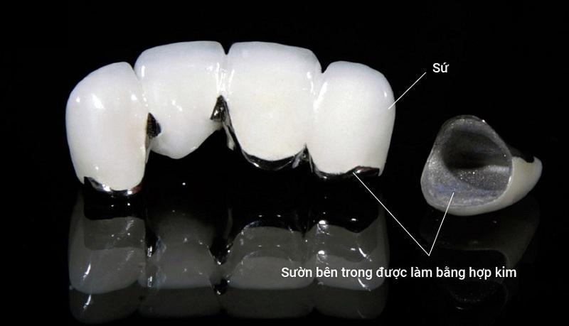 Cấu trúc 2 lớp của răng sứ sườn kim loại