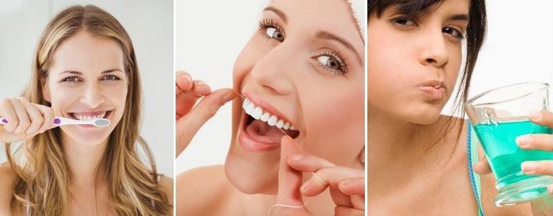 Vệ sinh răng miệng đúng cách là phương pháp bảo vệ răng sứ bền đẹp hiệu quả