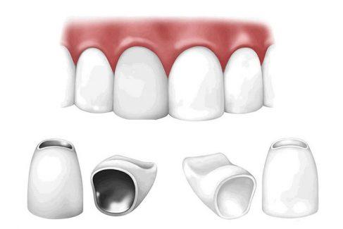 Trồng răng sứ loại nào tốt nhất? Răng sứ kim loại hay răng toàn sứ?