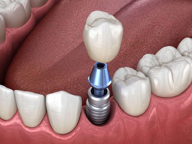 Cấy ghép răng Implant là phương pháp trồng răng hiện đại nhất tính tới thời điểm này
