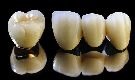 Trồng răng sứ Titan vừa an toàn vừa đáp ứng tính thẩm mỹ