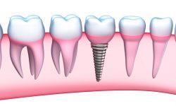 Trồng răng sứ vĩnh viễn mang đến hàm răng thẩm mỹ, bền chặt lâu dài