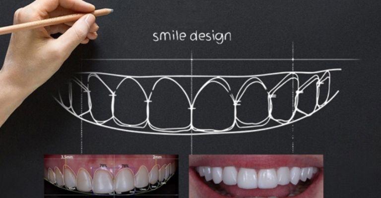 Công nghệ tái tạo nụ cười 3D - Smile Design của Vidental: Số 1 tại Việt Nam