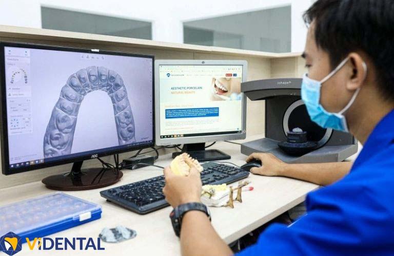 Công nghệ CAD/CAM tại Vidental tạo nên dáng răng, màu răng chuẩn xác