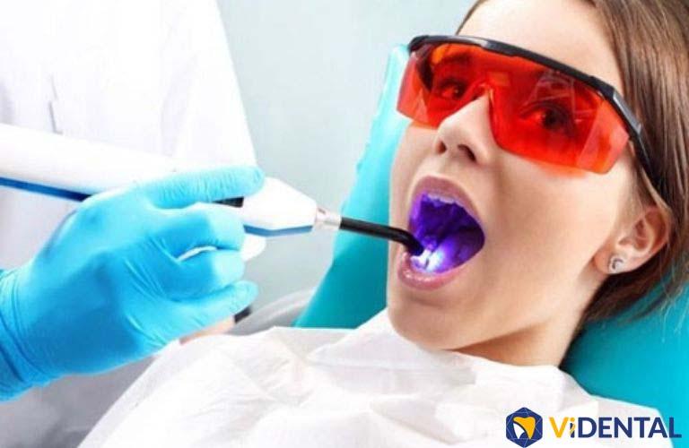 Công nghệ trám răng Laser Tech là kỹ thuật hiện đại bậc nhất trong nha khoa thẩm mỹ