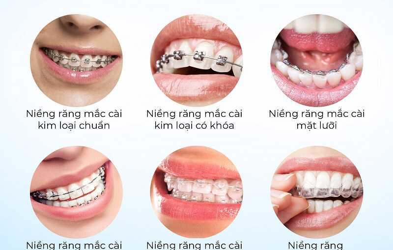 Các dịch vụ niềng răng tại nha khoa Dân Yên