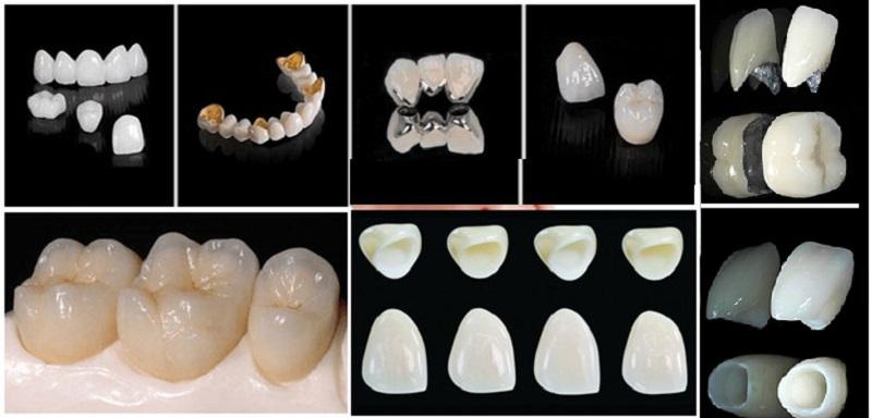 Các dịch vụ răng sứ thẩm mỹ tại nha khoa Quốc tế 2 - Cơ sở nha khoa ở An Giang uy tín
